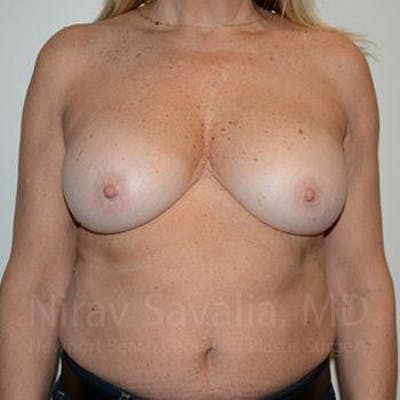 Breast Implant Revision Gallery - Patient 1655463 - Image 2
