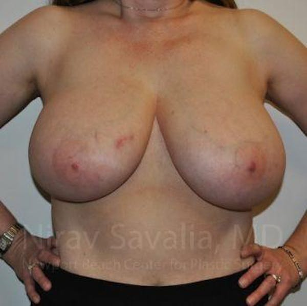 Breast Reduction Gallery - Patient 1655461 - Image 5