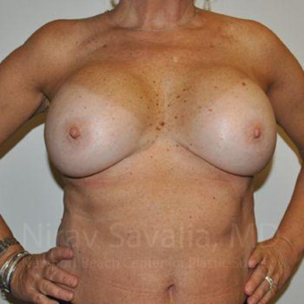 Breast Implant Revision Gallery - Patient 1655463 - Image 3