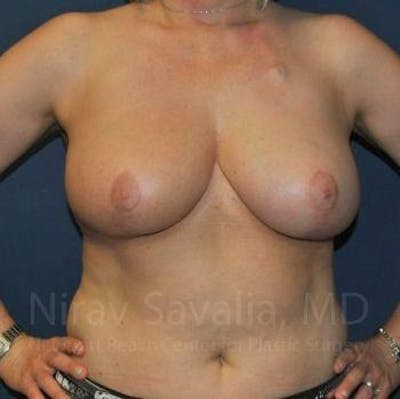 Breast Reduction Gallery - Patient 1655461 - Image 6