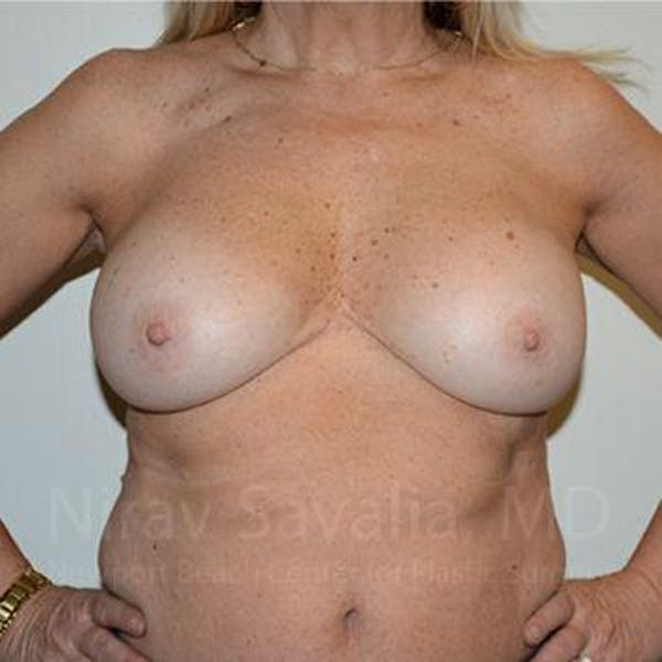 Breast Implant Revision Gallery - Patient 1655463 - Image 4