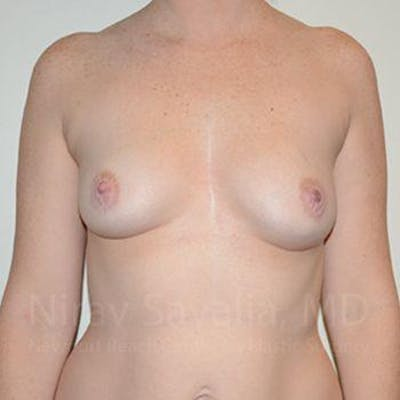 Breast Augmentation Gallery - Patient 1655459 - Image 1