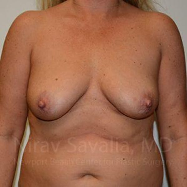 Breast Lift without Implants Gallery - Patient 1655460 - Image 1