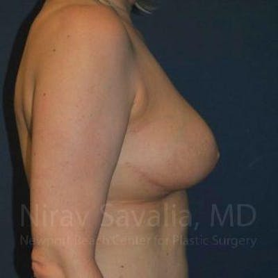 Breast Reduction Gallery - Patient 1655461 - Image 8
