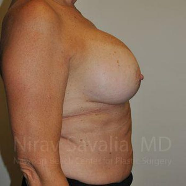 Breast Implant Revision Gallery - Patient 1655463 - Image 5