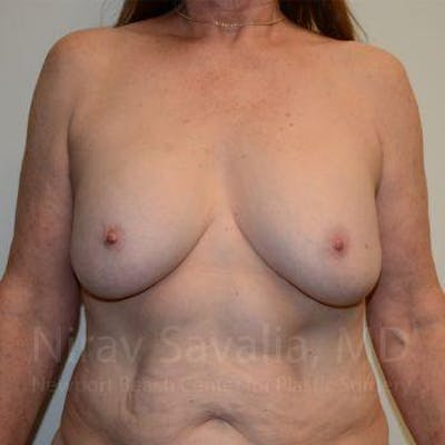 Breast Lift with Implants Gallery - Patient 1655458 - Image 1