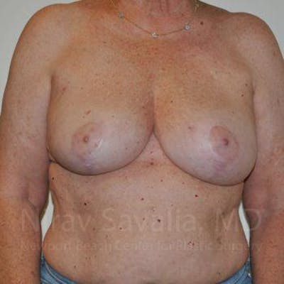 Oncoplastic Reconstruction Gallery - Patient 1655457 - Image 2