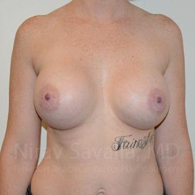 Breast Augmentation Gallery - Patient 1655459 - Image 2