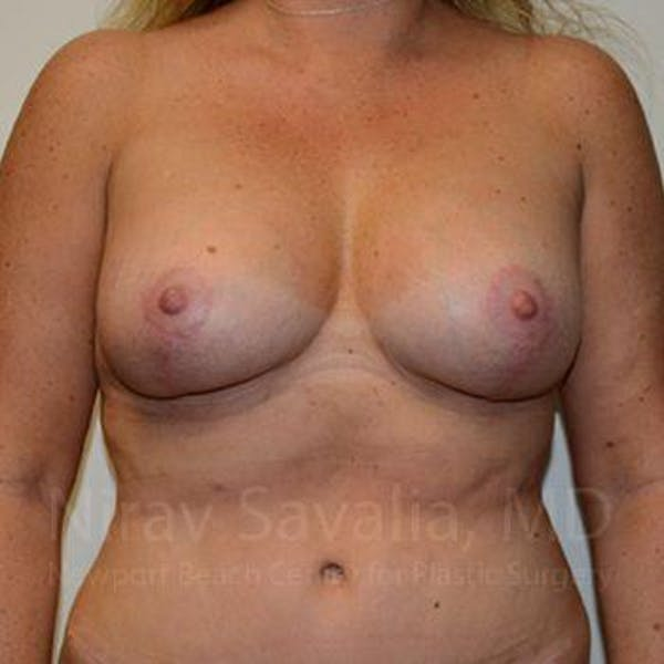 Breast Lift without Implants Gallery - Patient 1655460 - Image 2