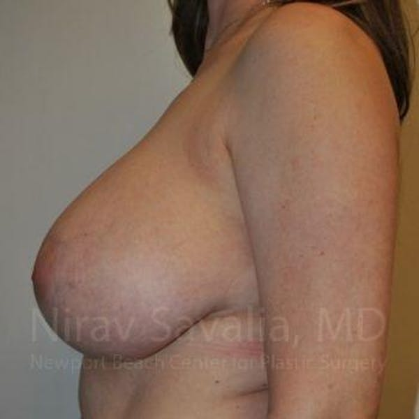 Breast Reduction Gallery - Patient 1655461 - Image 9