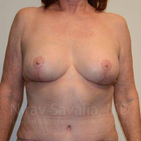 Breast Lift with Implants Gallery - Patient 1655458 - Image 2