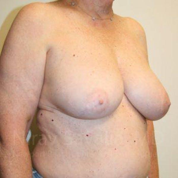 Oncoplastic Reconstruction Gallery - Patient 1655457 - Image 3