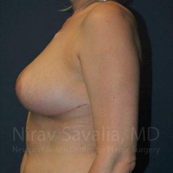 Breast Reduction Gallery - Patient 1655461 - Image 10