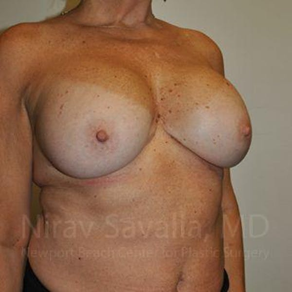 Breast Implant Revision Gallery - Patient 1655463 - Image 7