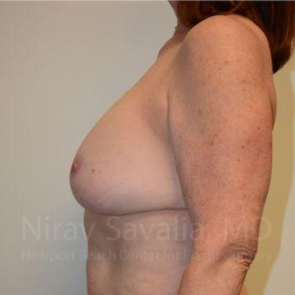 Breast Lift with Implants Gallery - Patient 1655458 - Image 3