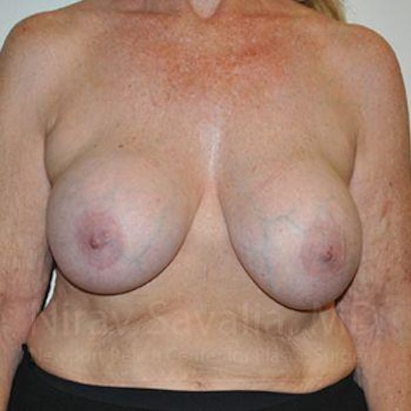 Breast Explantation / En Bloc Capsulectomy Gallery - Patient 1655462 - Image 1