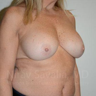 Breast Implant Revision Gallery - Patient 1655463 - Image 8