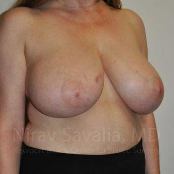 Breast Reduction Gallery - Patient 1655461 - Image 11