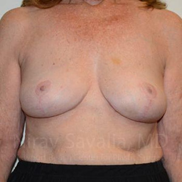 Breast Explantation / En Bloc Capsulectomy Gallery - Patient 1655462 - Image 2