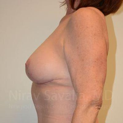 Breast Lift with Implants Gallery - Patient 1655458 - Image 4