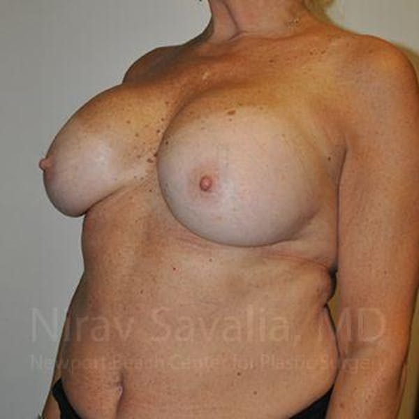 Breast Implant Revision Gallery - Patient 1655463 - Image 9
