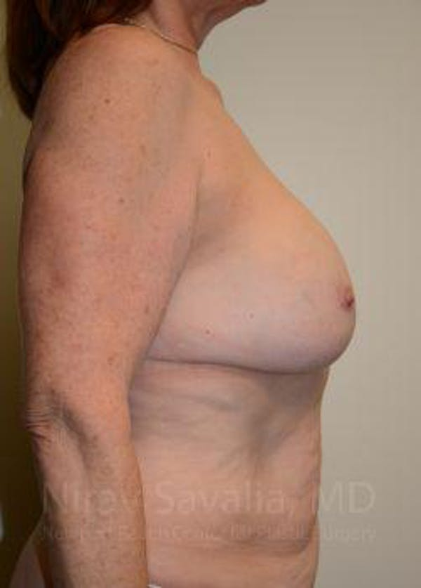 Breast Lift with Implants Gallery - Patient 1655458 - Image 5