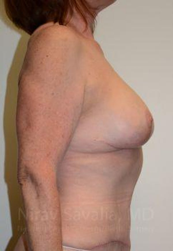 Breast Lift with Implants Gallery - Patient 1655458 - Image 6