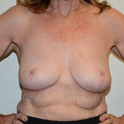 Breast Explantation / En Bloc Capsulectomy Gallery - Patient 1655462 - Image 4