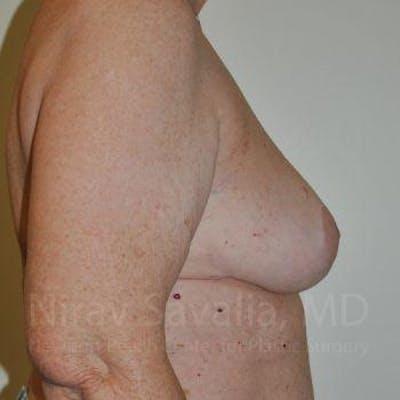 Oncoplastic Reconstruction Gallery - Patient 1655457 - Image 8