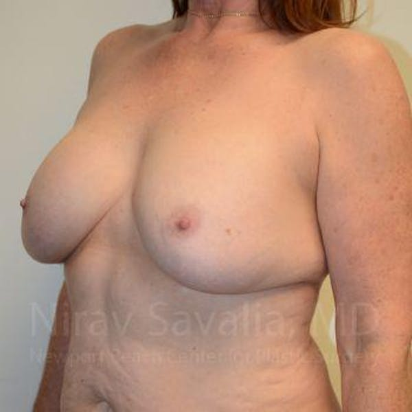 Breast Lift with Implants Gallery - Patient 1655458 - Image 7