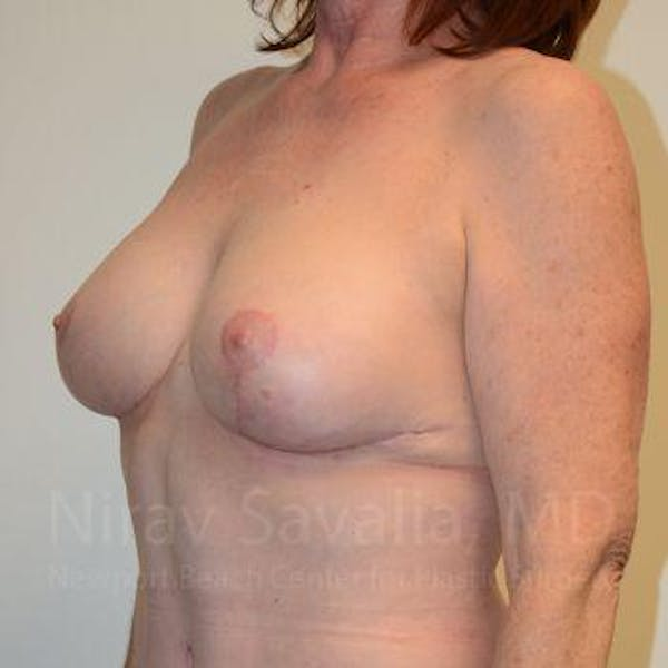Breast Lift with Implants Gallery - Patient 1655458 - Image 8