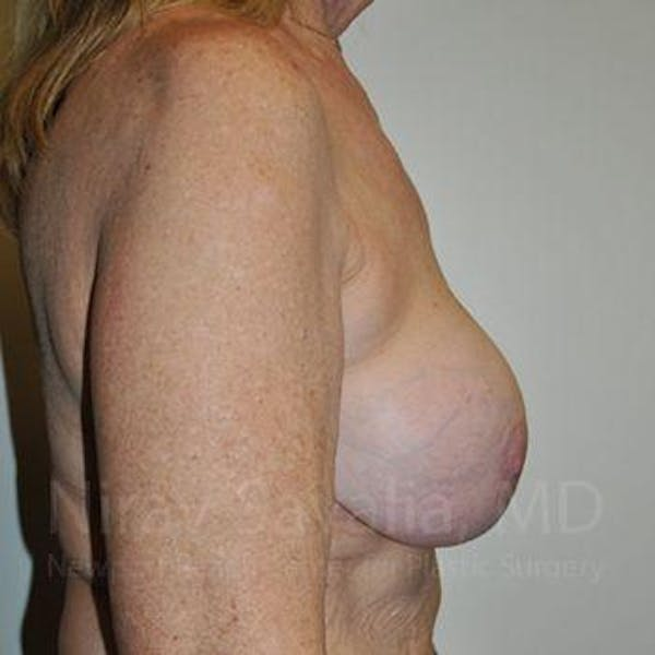 Breast Explantation / En Bloc Capsulectomy Gallery - Patient 1655462 - Image 5