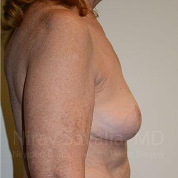 Breast Explantation / En Bloc Capsulectomy Gallery - Patient 1655462 - Image 6