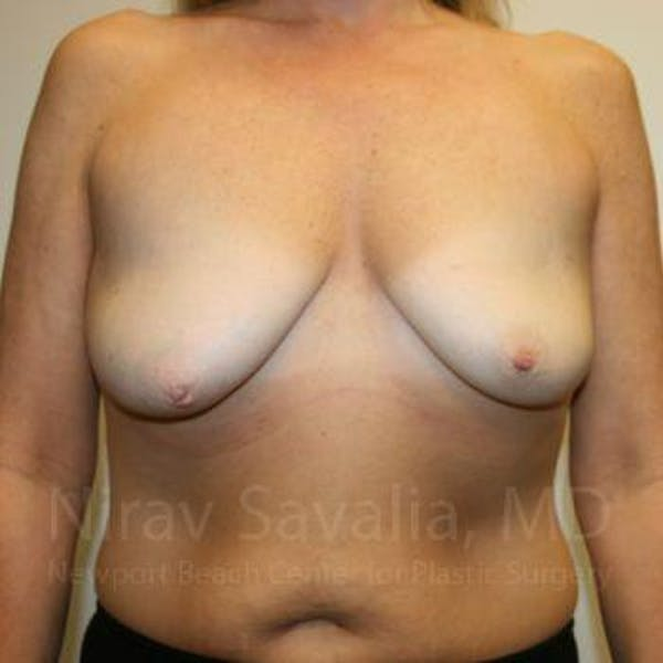 Mastectomy Reconstruction Gallery - Patient 1655464 - Image 1