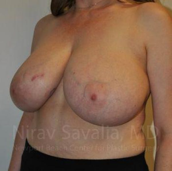 Breast Reduction Gallery - Patient 1655461 - Image 13