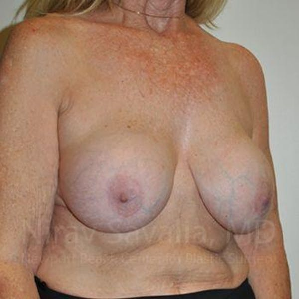 Breast Explantation / En Bloc Capsulectomy Gallery - Patient 1655462 - Image 7