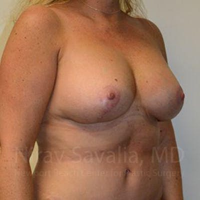 Breast Lift without Implants Gallery - Patient 1655460 - Image 6