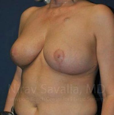 Breast Reduction Gallery - Patient 1655461 - Image 14