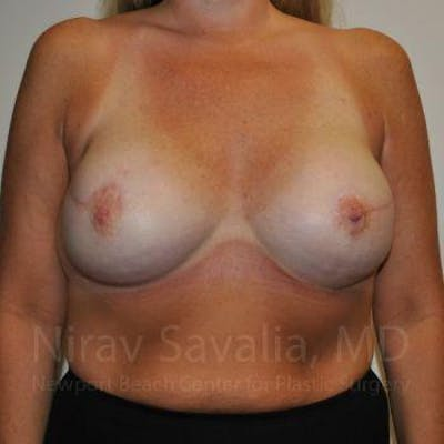 Mastectomy Reconstruction Gallery - Patient 1655464 - Image 2