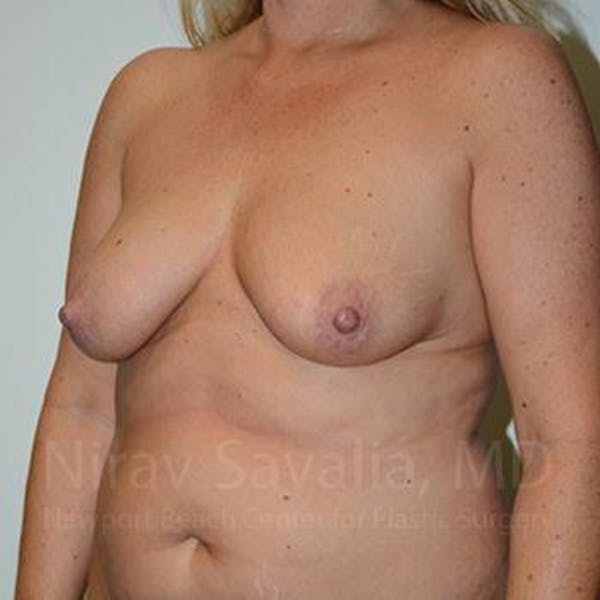 Breast Lift without Implants Gallery - Patient 1655460 - Image 7