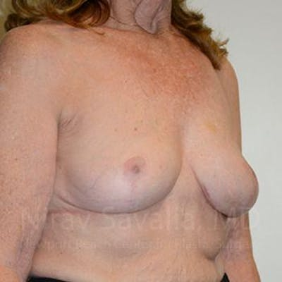 Breast Explantation / En Bloc Capsulectomy Gallery - Patient 1655462 - Image 8