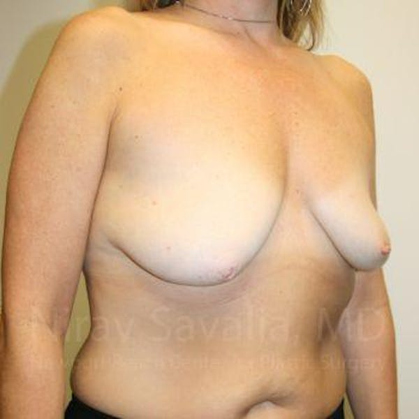 Mastectomy Reconstruction Gallery - Patient 1655464 - Image 3