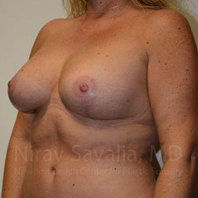 Breast Lift without Implants Gallery - Patient 1655460 - Image 8