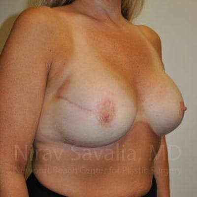 Mastectomy Reconstruction Gallery - Patient 1655464 - Image 4
