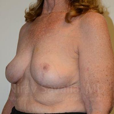 Breast Explantation / En Bloc Capsulectomy Gallery - Patient 1655462 - Image 10