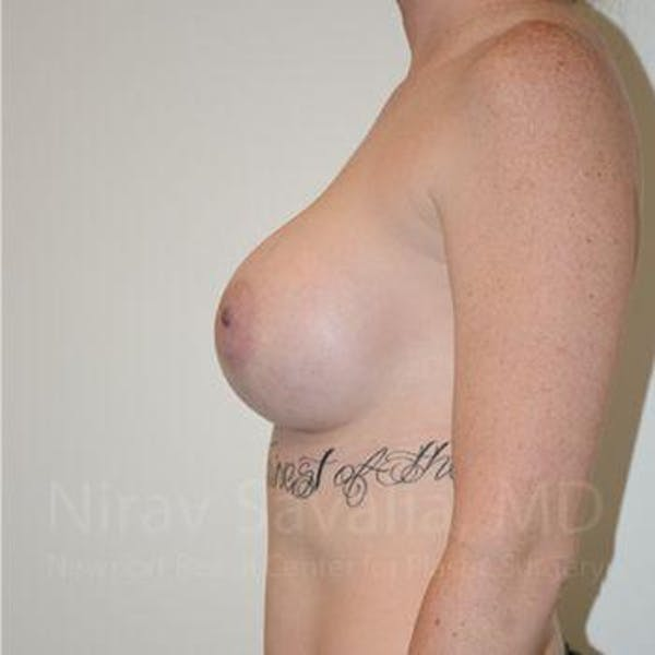 Breast Augmentation Gallery - Patient 1655459 - Image 10