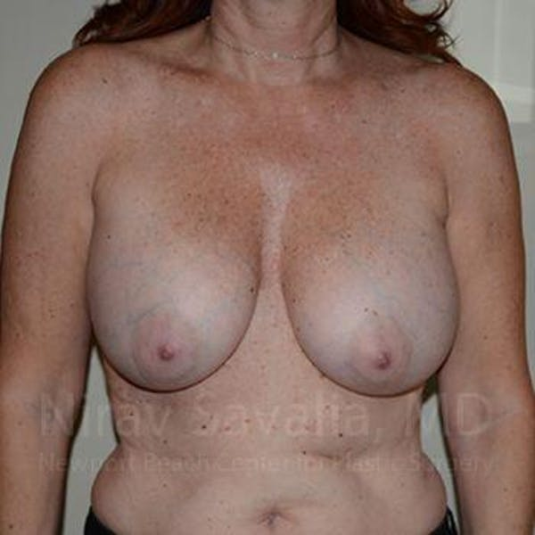 Breast Lift with Implants Gallery - Patient 1655467 - Image 1