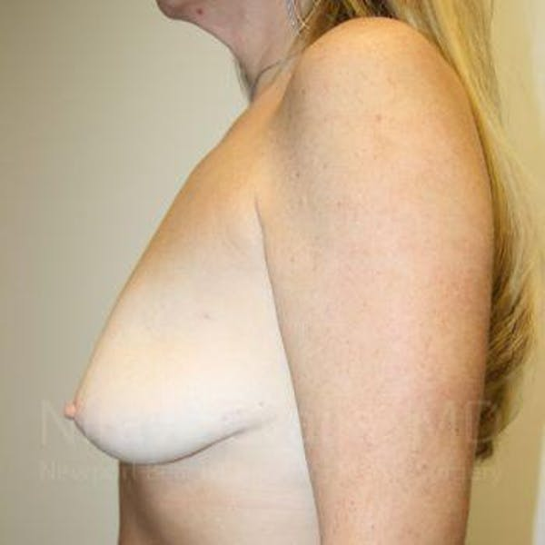 Mastectomy Reconstruction Gallery - Patient 1655464 - Image 7