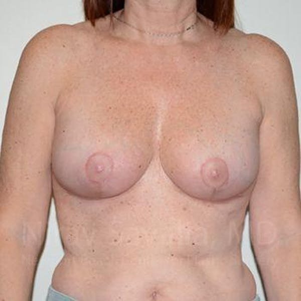 Breast Lift with Implants Gallery - Patient 1655467 - Image 2
