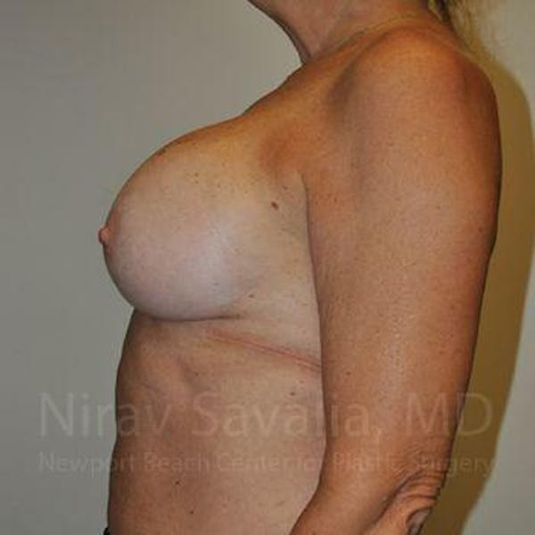 Breast Implant Revision Gallery - Patient 1655463 - Image 12